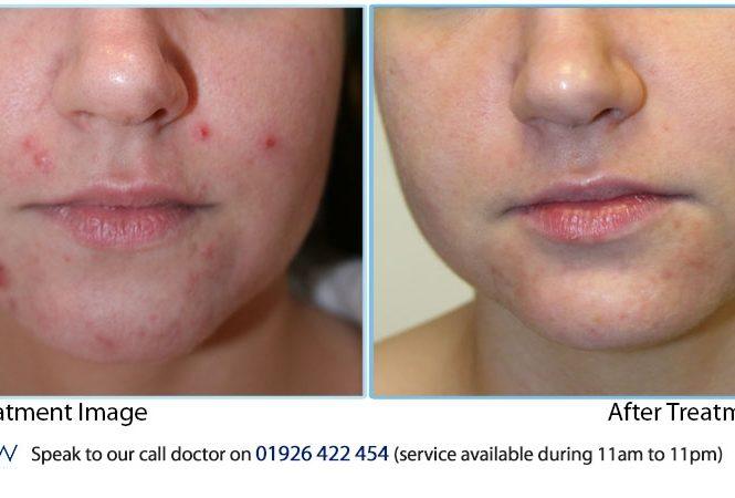 Atache Professional Treatments Treatments Results