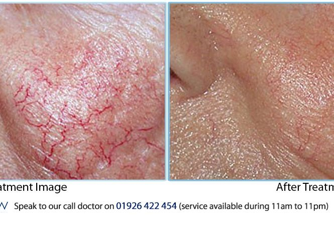 Thread veins removal with TC3000 treatment results Gallery Facial thread veins removal