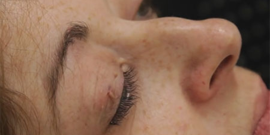 Eyelid Skin Tags Cosmetic Treatment