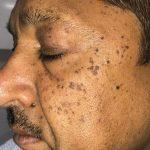 before-seborrheic keratosis-treatment-2