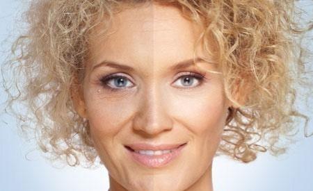 Pigmentation Ipl Treatments