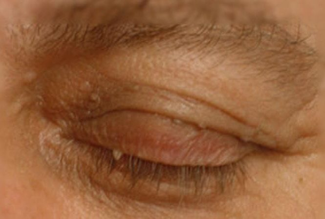 Eyelid Skin Tag Removal Treatment Uk Birmingham Coventry Leicester