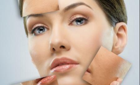 Vitiligo Laser Repigmentation With Deka Excilite-?