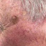 Seborrhoeic keratosis-age spots-5