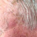 Seborrhoeic keratosis-age spots-5a